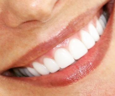 Estética e saúde bucal