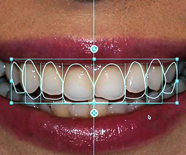 Odontologia estética especial