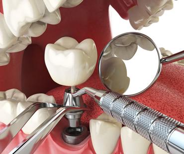 Tratamento dental reparador